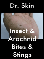 Insect and Arachnid Bites and Stings