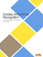 Cardiac Arrhythmia Recognition