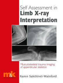 Self Assessment in Limb X-ray Interpretation