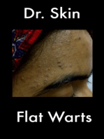 Flat Warts