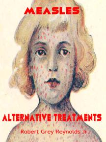 Measles Alternative Treatments