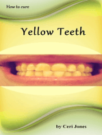 How to Deal With Yellow Teeth