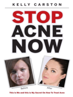 Stop Acne Now