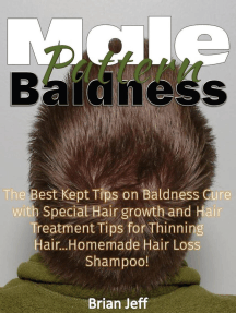 Male Pattern Baldness: The Best Kept Tips on Baldness Cure with Special Hair growth and Hair Treatment Tips for Thinning Hair...Homemade Hair Loss Shampoo!