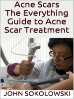 Acne Scars: The Everything Guide to Acne Scar Treatment