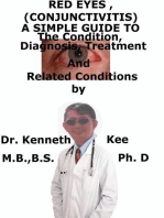 Red Eyes (Conjunctivitis), A Simple Guide To The Condition, Diagnosis, Treatment And Related Conditions