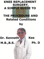 Knee Replacement Surgery, A Simple Guide To The Procedure And Related Conditions