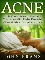 Acne: Little Known Natural Home Remedies For Adult Acne Sufferers