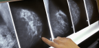 Some Small Tumors In Breasts May Not Be So Bad After All