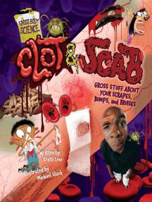 Clot & Scab: Gross Stuff about Your Scrapes, Bumps, and Bruises
