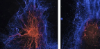 'Anti-Sense' RNA Aids Repair of Damaged Nerves