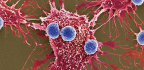 FDA Approves First Gene Therapy Treatment For Cancer