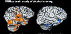 Brain Scans Suggest This Therapy Eases Alcohol Cravings