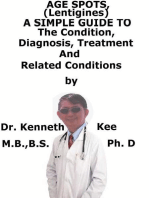 Age Spots (Lentigines), A Simple Guide To The Condition, Diagnosis, Treatment And Related Conditions