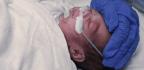 Preterm Births in the U.S. Rise Again, Signaling Worrisome Trend
