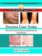 Eczema Cure Today
