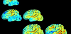 Watching Baby Brains Get Wrinkly Could Flag Future Disorders