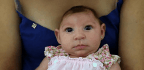 For Zika-exposed Babies, Trouble May Emerge In Their First Year
