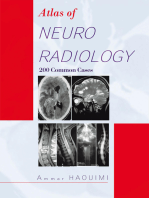 Atlas of Neuroradiology
