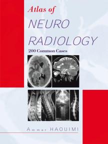 Atlas of Neuroradiology: 200 Common Cases