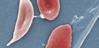 Global Blood, FDA Agree On Fast-filing Plan For New Sickle Cell Disease Drug