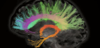 Scans Show Women's Brains Remain Youthful As Male Brains Wind Down