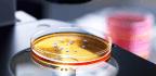 Are Gut Bacteria Behind A Dangerous Autoimmune Disease?