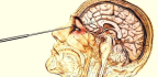 A Brief And Awful History Of The Lobotomy