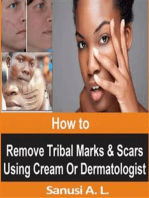 How to Remove Tribal Marks & Scars