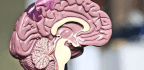 'Good Gene' May Offer New Way To Fight Glioblastoma